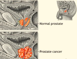 Prostate cancer tumor growth halted with omega 3 fish oil for Fish oil prostate cancer